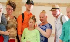 slider_albinisme